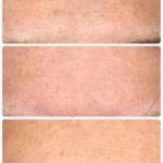 ニゾラール クリーム|顔への塗り方・効果・使用後画像