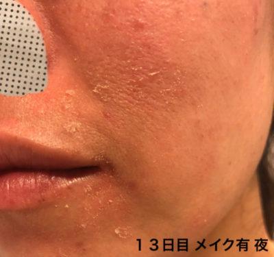 ハイドロキノンとトレチノイン 皮剥け