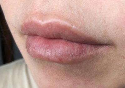 ダーマローラー唇
